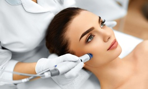 Esthetic Line Beauty Clinic: Up to Three Sessions of Crystal Clear Microdermabrasion with Consultation at Esthetic Line Beauty Clinic (Up to 74% Off)