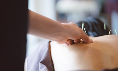 Up to Three 30-Minute Dry Needling Sessions at Bex Performance Care by Rebecca Hillis (Up to 70% Off)