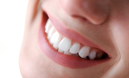 image for $35 for <strong>Invisalign</strong> Package at West LA Dental Health Center ($2,255 Value)