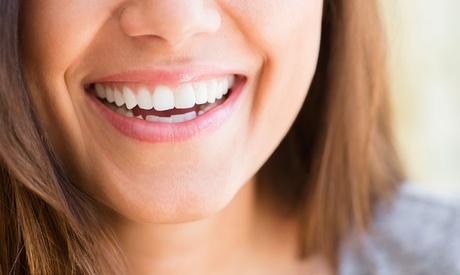 Férula de descarga semirrígida con limpieza bucal y opción a blanqueamiento led desde 69,95 € en Benimaclet