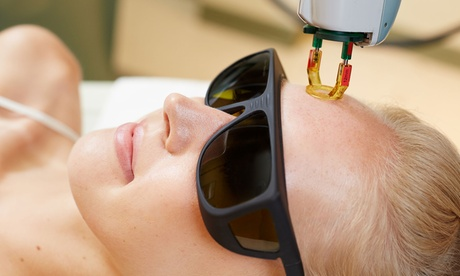 One, Three, or Six IPL Photofacial Sessions at Celebrity Smiles (Up to 79% Off) 4893552e-ea8f-4e6f-8a23-1c162ccef933
