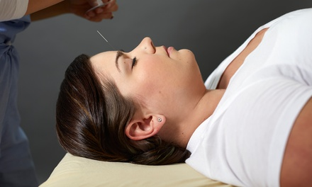 Two or Four Acupuncture Sessions at Community Acupuncture Studio (Up to 71% Off). Four Options Available.