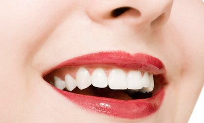 $42 for One 30-Minute <strong>Teeth-Whitening</strong> Session at Waterloo Tan ($99 Value)