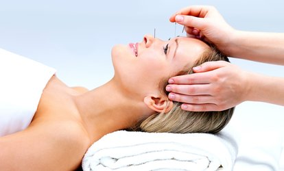 30-or 60-Minute Facial Acupuncture at Lucy Wilson Acupuncture (46% Off)