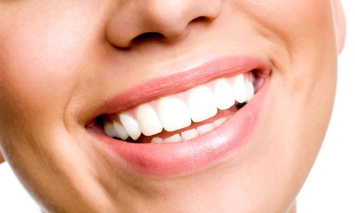 Brite Clean Smiles - Costa Mesa: Zoom! Teeth Whitening or Dental Exam with Whitening Package at Brite Clean Smiles (Up to 60% Off)