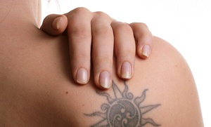 Dr. Tattoff: Three Tattoo-Removal Sessions on an Area up to 4, 6, or 10 Square Inches at Dr. Tattoff (Up to 80% Off)