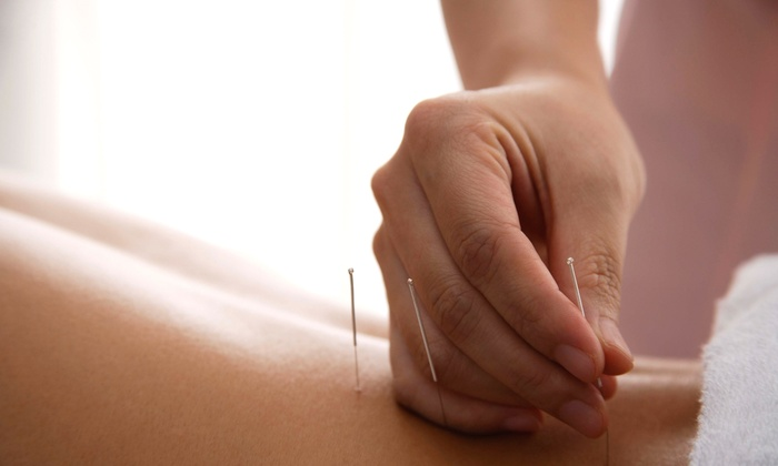 Kinetic Acupuncture - Mid-Olympic: One or Two Acupuncture Sessions at Kinetic Acupuncture(Up to 79% Off)