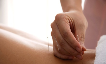 One, Two, or Three 60-Minute Acupuncture Treatments at Hui Min Acupuncture (Up to 70% Off)