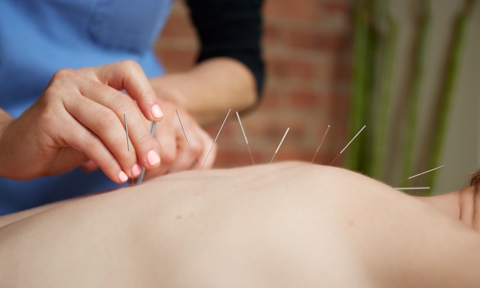 Get Physical Physiotherapy - Multiple Locations: C$39 for Assessment and Exam with Acupuncture or Kinesio Taping at Get Physical Physiotherapy (C$120 Value)