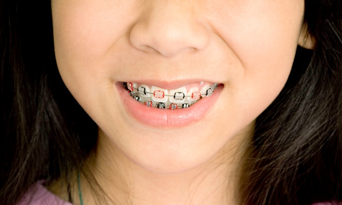 Twin Cities Modern Dentistry - Minnetonka - Hopkins: $2,799 for Orthodontic Braces and Whitening Package at Twin Cities Modern Dentistry ($4,926 Value)