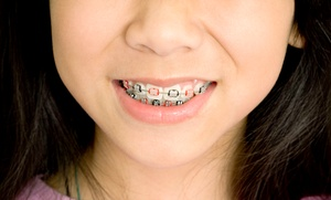 Twin Cities Modern Dentistry: $2,799 for Orthodontic Braces and Whitening Package at Twin Cities Modern Dentistry ($4,926 Value)