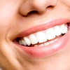 Pulizia denti e smacchiamento