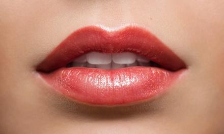 Lippenvolumenaufbau mit Hyaluron