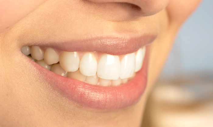 Smiles by Hanna - Higley Park Professional Village Condominium: $79 for Exam, X-rays, Cleaning, Toothbrush, and Fluoride Treatment at Smiles by Hanna ($453 Value)