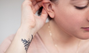 Old Town Medspa: Three Laser Tattoo-Removal Treatments at Old Town Medspa (Up to 50% Off)