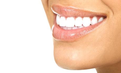 Tratamiento de ortodoncia con brackets a elegir entre metálicos, de cerámica o de zafiro desde 239 € en Boca@Boca