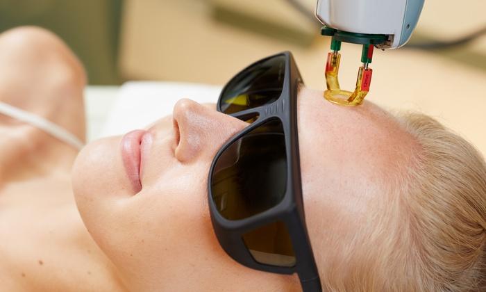 Yana Skincare - Yana Skin Care: One or Two IPL Photofacials at Yana Skincare (Up to 78% Off)