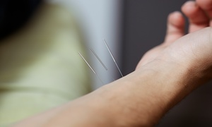 The Bow Acupuncture & Community Wellness: One or Three Community Acupuncture Sessions at The Bow Acupuncture & Community Wellness (Up to 61% Off)