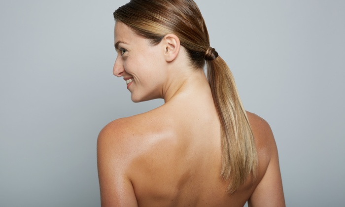 NeoVision - Multiple Locations: One or Three Laser Scar-Removal Sessions at NeoVision (Up to 82% Off)