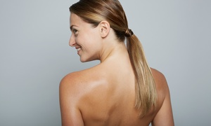 NeoVision: One or Three Laser Scar-Removal Sessions at NeoVision (Up to 82% Off)