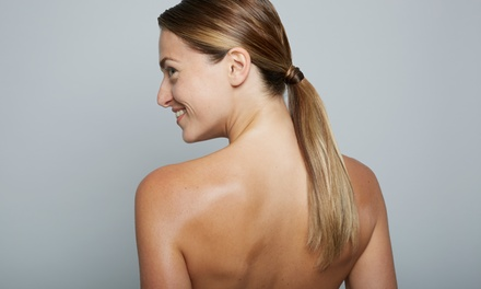 Up to 82% Off Laser Scar Removal