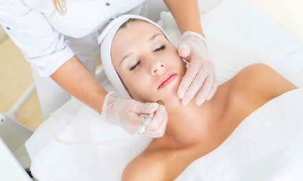 One or Two Microdermabrasion Treatments with Full Custom Facial at Soft Esthetics (Up to 66% Off)