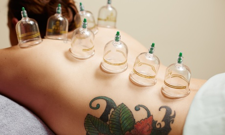 One or Two 60-Minute Acupuncture and Cupping Sessions at Holisitc Medical Wellness (Up to 75% Off) bd2ff96e-9d30-465a-ac0a-a30db1312044