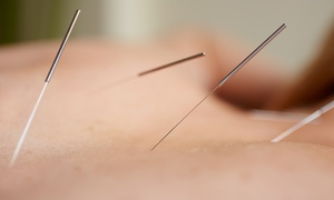 klimick acupuncture: One or Three Community or Private Acupuncture Sessions at Klimick Acupuncture (Up to 68% Off)