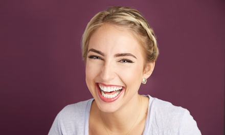 Peroxide- or Botanical-Gel Teeth-Whitening Treatment at Beauty Bar Laser Clinic (Up to77% Off)