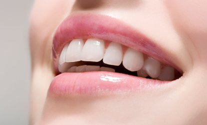 image for Dental Exam with an X-Ray, Scale and Polish and an Optional Home Whitening Kit at Greenleaves Dental Practice (58% Off)