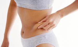 BE Beauty Clinic: Word terug slank dankzij deze 4 sessies lipofreeze voor een kleine of grote zone bij Beauty Clinic