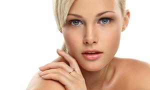 Beyourself-Estética: 1 o 2 sesiones de microdermoabrasión con punta de diamante y radiofrecuencia facial desde 19,95 € en Beyourself-Estética