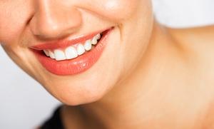 Limpieza bucal con ultrasonidos y revisión por 14,90 € y con 1, 2 o 4 empastes dentales desde 19,90 €