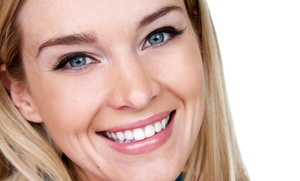 Beauty And Smile: £79 for Laser Teeth Whitening at Choice of Location with Beauty and Smile (74% Off)