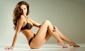 Three Or Six Laser Hair Removal Treatments At Redwood Medspa (up To 76% Off)