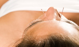 Natural Way Health Center: One or Three Acupuncture Facelift Sessions at Natural Way Health Center (Up to 78% Off)