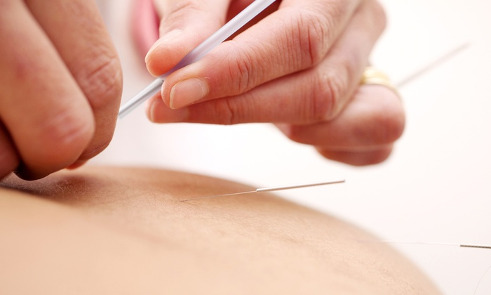 Dr David Cavazos Chiropractic and Physical Therapy - Carol Stream: Two or Three Acupuncture Treatments at Dr. David Cavazos Chiropractic and Physical Therapy (Up to 85% Off)
