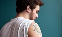 Four Sessions of Laser Tattoo Removal on Small, Medium or Large Area at Yorkshire Laser and Aesthetics (Up to 69% Off)
