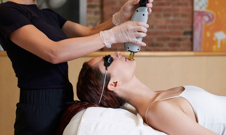 Laser Hair Removal at SoMich Skin Spa (Up to 70% Off). Eight Options Available. f9b3660a-3080-4f2d-8e97-433691997d5b