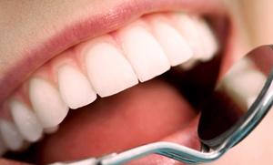 Limpieza bucal con ultrasonidos, revisión, pulido, fluorización y blanqueamiento LED desde 12,90 € en Jorge Mato Dental