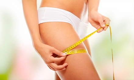 Three, Five, or Eight Laser Lipo Treatments at Cape Coral Weight Loss & Wellbeing (Up to 84% Off)
