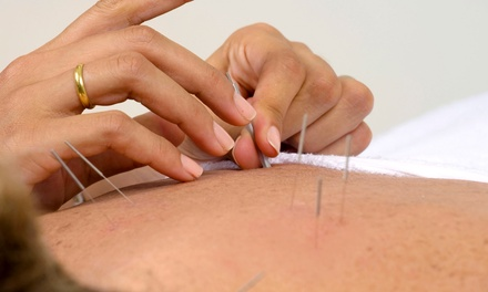 $65 for a Consultation, Treatment, and Two Follow-up Visits at Adina Robinson Acupuncture ($210 Value)