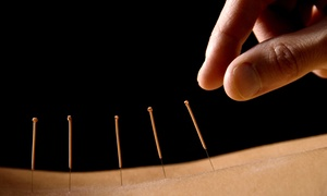 Xiao Acupuncture Care, P.C.: One or Three One-Hour Acupuncture Treatments at Xiao Acupuncture Care, P.C. (Up to 71% Off)