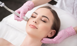 Crystal Diamond Clinics: One or Three Sessions of Microdermabrasion Facial Treatment at Crystal Diamond Clinics (Up to 79% Off)