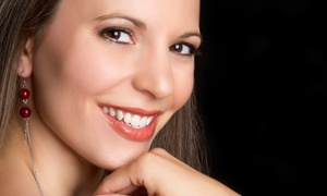 Star smiles: Three or Five Laser Teeth-Whitening Treatments plus Aftercare Take-Home Kit at Star Smiles (69% Off)