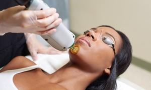 Janelle MediSpa: Six Laser Hair-Removal Treatments for a Small, Medium, or Large Area at Janelle MediSpa (Up to 95% Off)