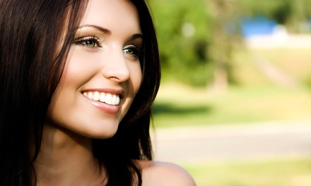 $157 for a One-Year Dental Coverage Program with In-Office Whitening at iSmile ($708 Value)
