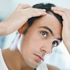 50% Off Scalp Micropigmentation