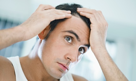 $1,500 for Scalp Micropigmentation at Always Pretty Salon and Spa ($3,000 Value)