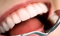 Visita odontoiatrica e pulizia denti, più otturazione estetica e sbiancamento LED (sconto fino a 90%). Valido in 2 sedi